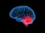 X-ray brain pathology